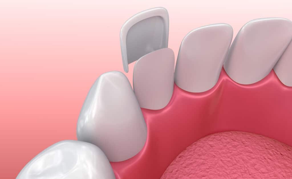 Veneers oder Zahnblenden, bevor Sie auf die Zahnoberfläche angeheftet werden.